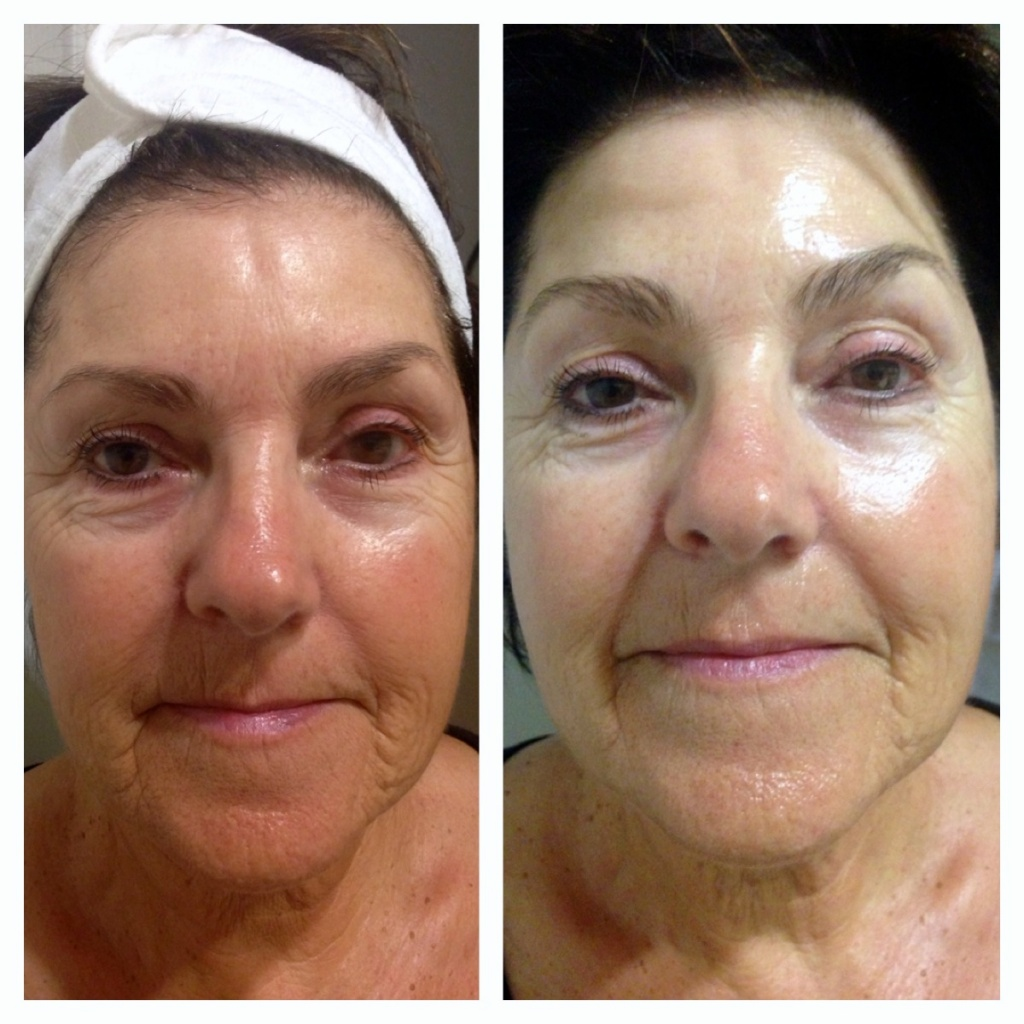 microcurrent face lift before and after